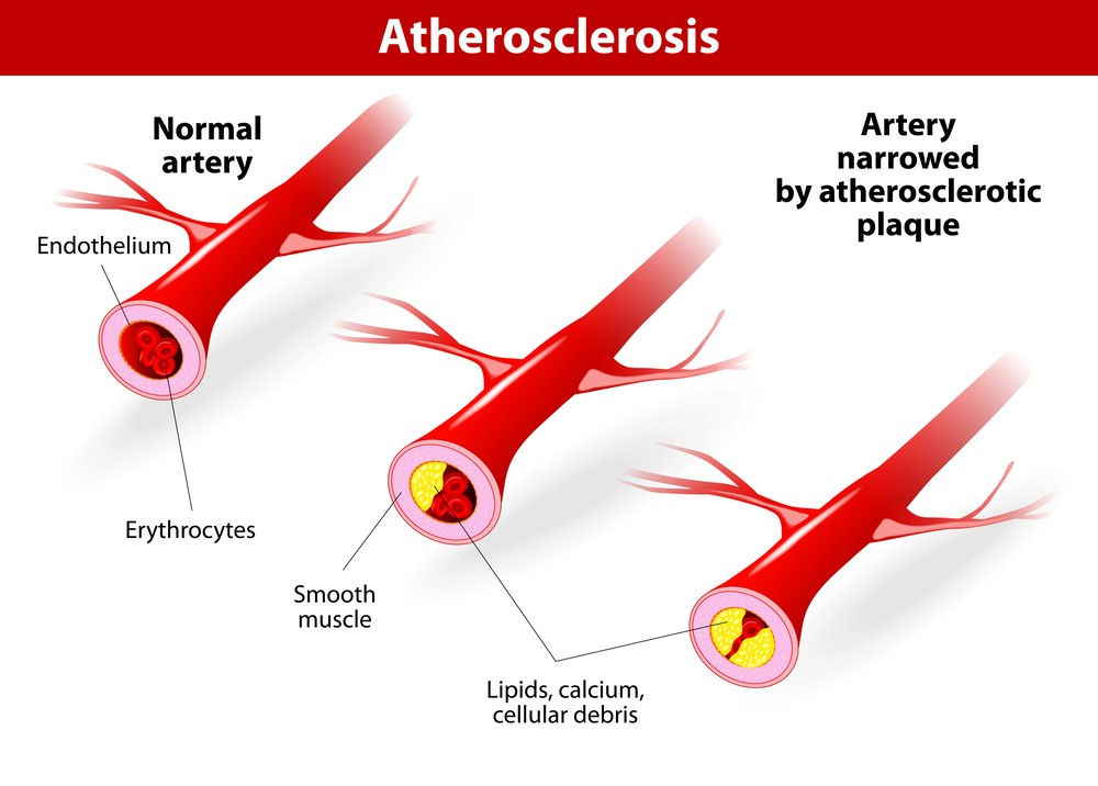 Artherosclerosis causes Erectile Dysfunction