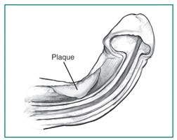 casue of Peyronie's Disease